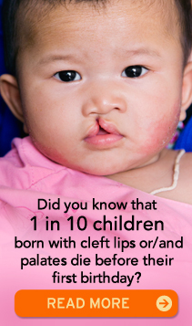 Did you know that 1 in 500 children are born with a cleft lip, cleft palate or both? READ MORE